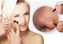 Phương pháp trị mụn đầu đen từ nguyên liệu tự nhiên