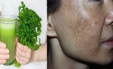 Trị nám bằng rau mùi: đơn giản nhưng hiệu quả vô cùng